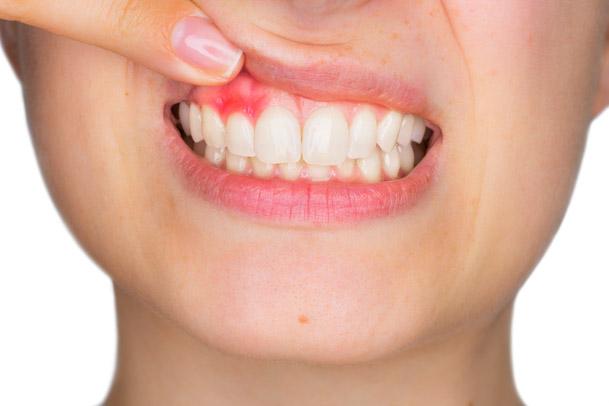 Parodontologie - Parodontitisbehandlung in Wiesbaden bei entzündetem Zahnfleisch