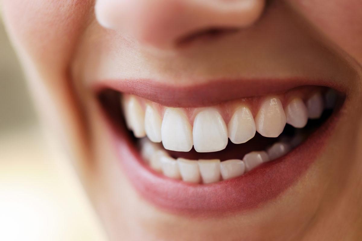 Parodontose Behandlung - Parodontitis cover