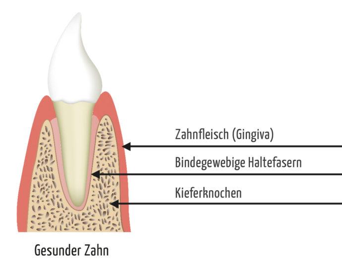 Parodontose Behandlung - Parodontitis gesunder-zahn