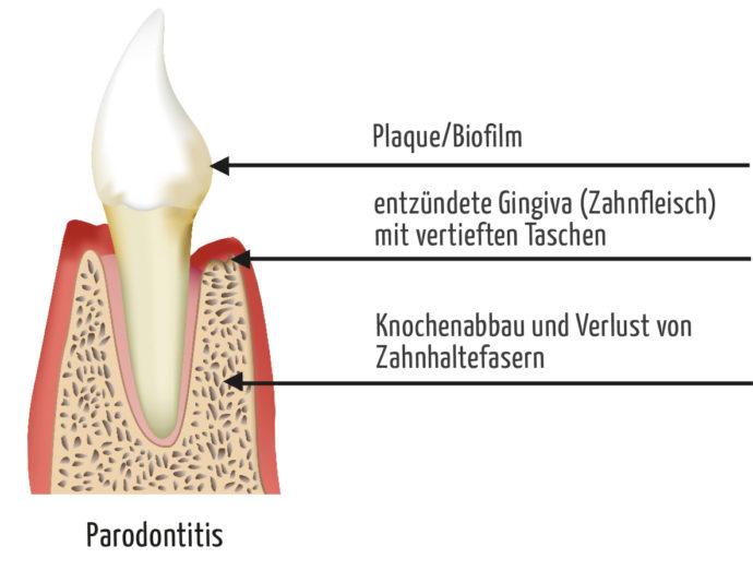 Parodontose Behandlung - Parodontitis in Wiesbaden