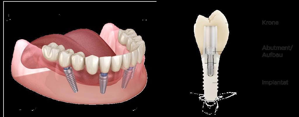 Zahnimplantate - Ansicht. Zahnarztpraxis Wiesbaden
