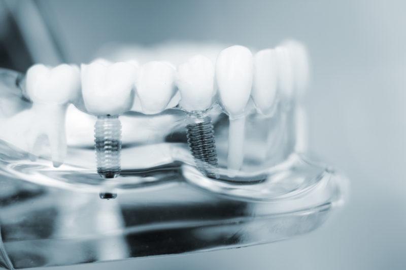 Zahnimplantate in Wiesbaden - Zahnarztpraxis Zahnzentrum Gawron